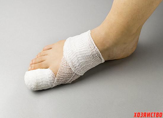 Вросший ноготь на ноге.jpg