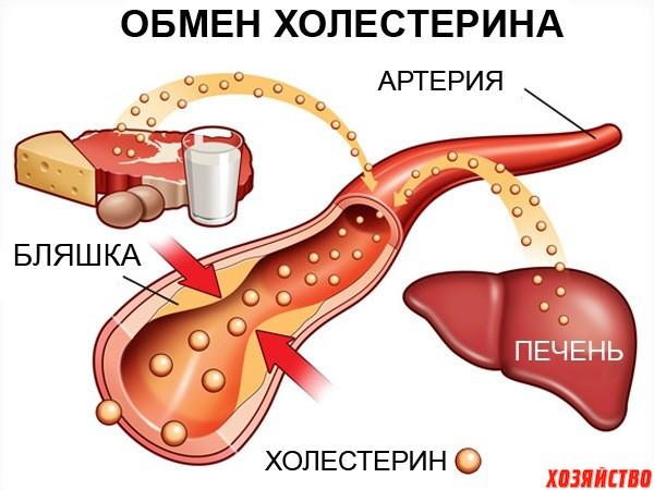 признаки повышенного холестерина у женщины
