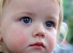 Народная медицина: чем лечить диатез у ребенка