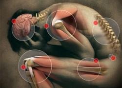 Артрозы и артриты лечим компрессами из облепихи
