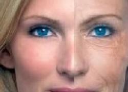 Увлажняющий крем и морщины: кто сильней?