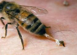 Укусы пчел лечат пьянство
