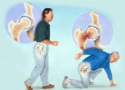 Перелом шейки бедра: как избежать «переломных» моментов