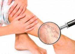 Варикоз: болезнь или косметический дефект?