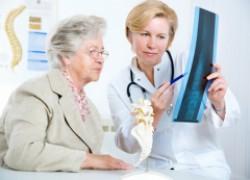 Профилактика остеопороза, или береги кости смолоду