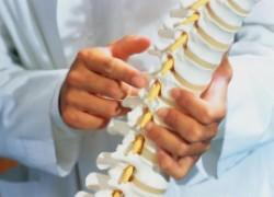 Что такое компрессионный перелом позвоночника?