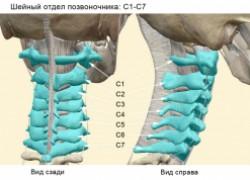 Корешковый синдром: симптомы и лечение