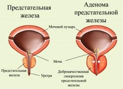 Аденома простаты связана с повышенным тестостероном в организме?