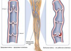 Варикозное расширение вен: первые симптомы и лечение