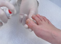 Грибок ногтей заразен и опасен