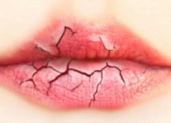 Шершавый поцелуй, или чем лечить обветренные губы