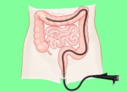 Пять поводов проверить кишечник