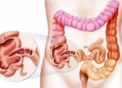 «дырявый кишечник»: причины и последствия