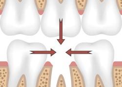 Что происходит при потере зуба