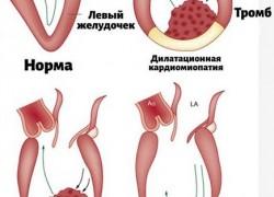 Опасность: тромбы внутри сердца