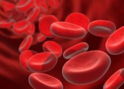 Железодефицитная анемия. правда и мифы