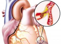 Атеросклероз губит жизни миллионов людей