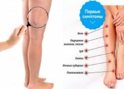 Советы больным с симптомами варикозной болезни