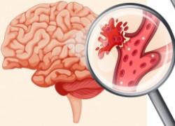 Кровоизлияние в мозг: причины и диагностика