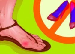 Шишки на пальцах – расплата за каблуки?