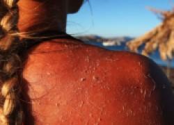 Напоминаем: загар вызывает рак кожи