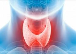 Йод и заболевания щитовидной железы