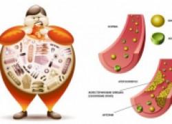 Вам точно нужно знать свой холестерин