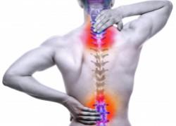 Спина болит: радикулит