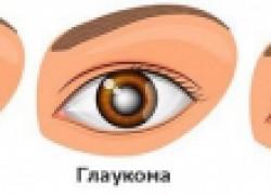 Глаукома: почему это случилось со мной?