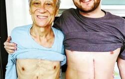 Парень пожертвовал 60% печени для своего отца!