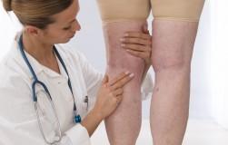 Лишний вес и варикоз – вот лечения вопрос