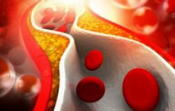 14 причин повышения холестерина в крови
