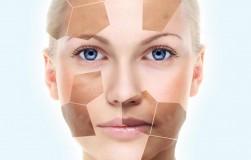 Все, что вы хотели знать о пигментации на коже