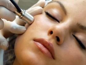 Чистка лица алмазная дермабразия